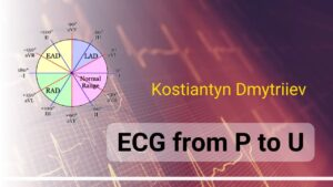 Онлайн школа ECG from P to U